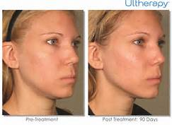 Ultherapy pic4